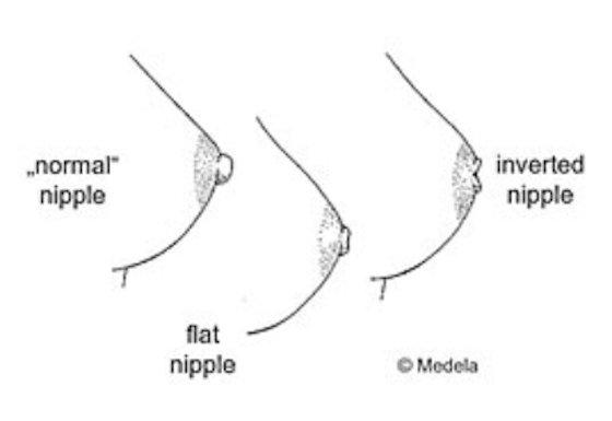 Inverted, Flat or Very Large Nipples Breastfeeding - YouTube