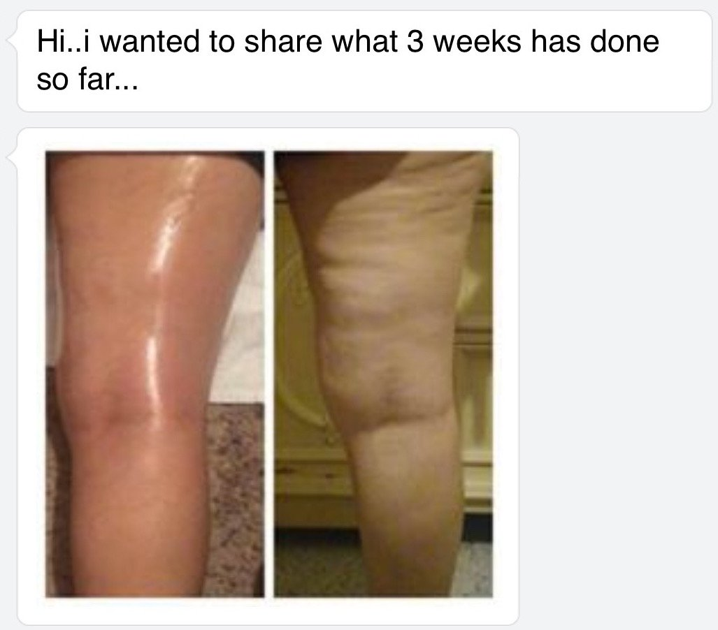 1 3 weeks - cellulite