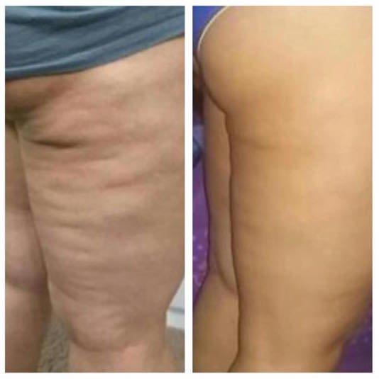 1 3 weeks thighs