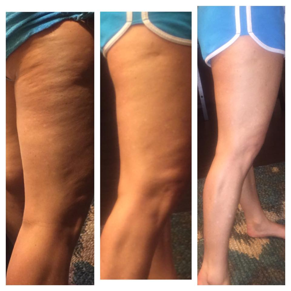 1 Ashleys legs-1 session-cellulite