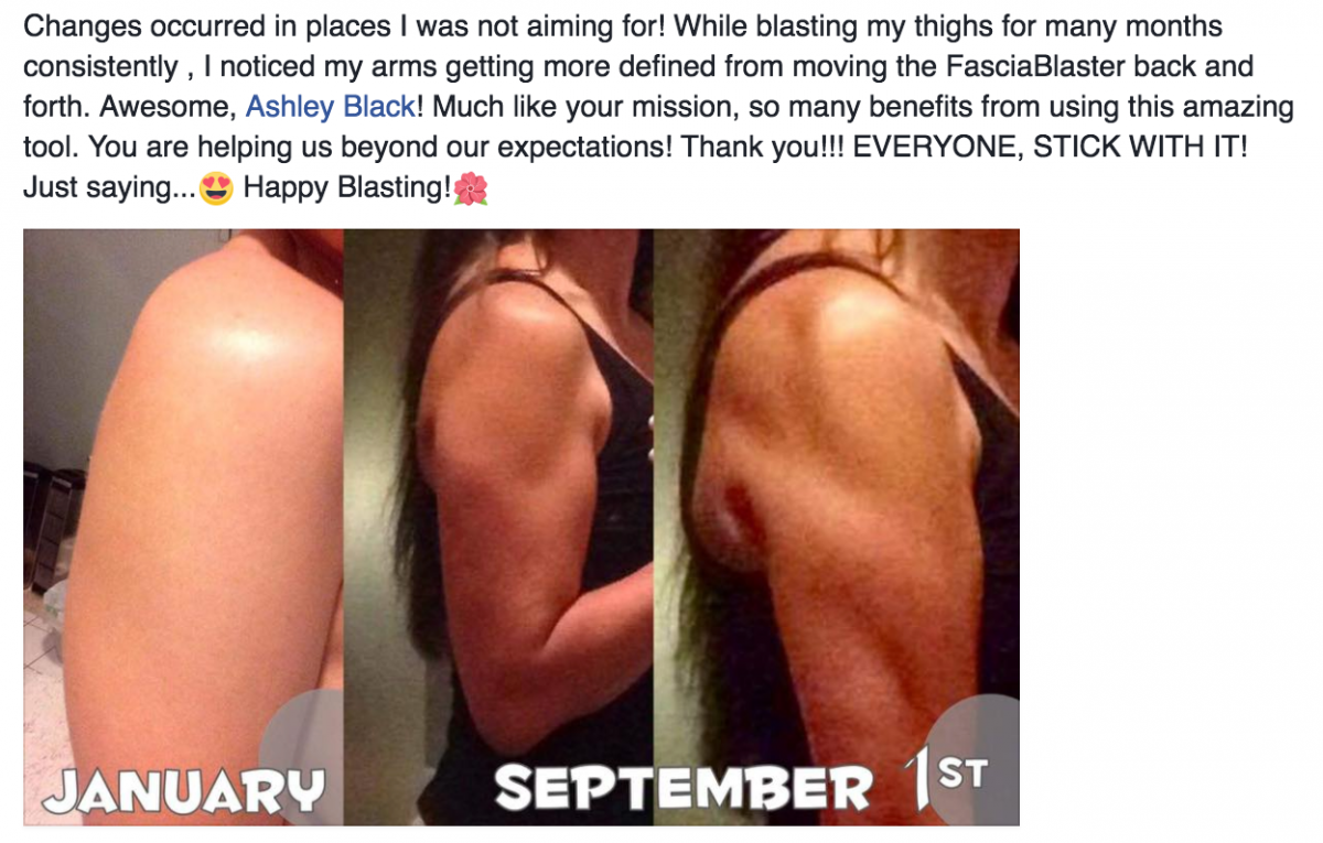 Dea Viola_5months_muscle definition_arm_FasciaBlaster results