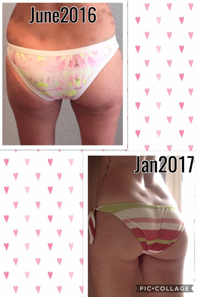 Erin Bowers Wolger_FasciaBlaster results