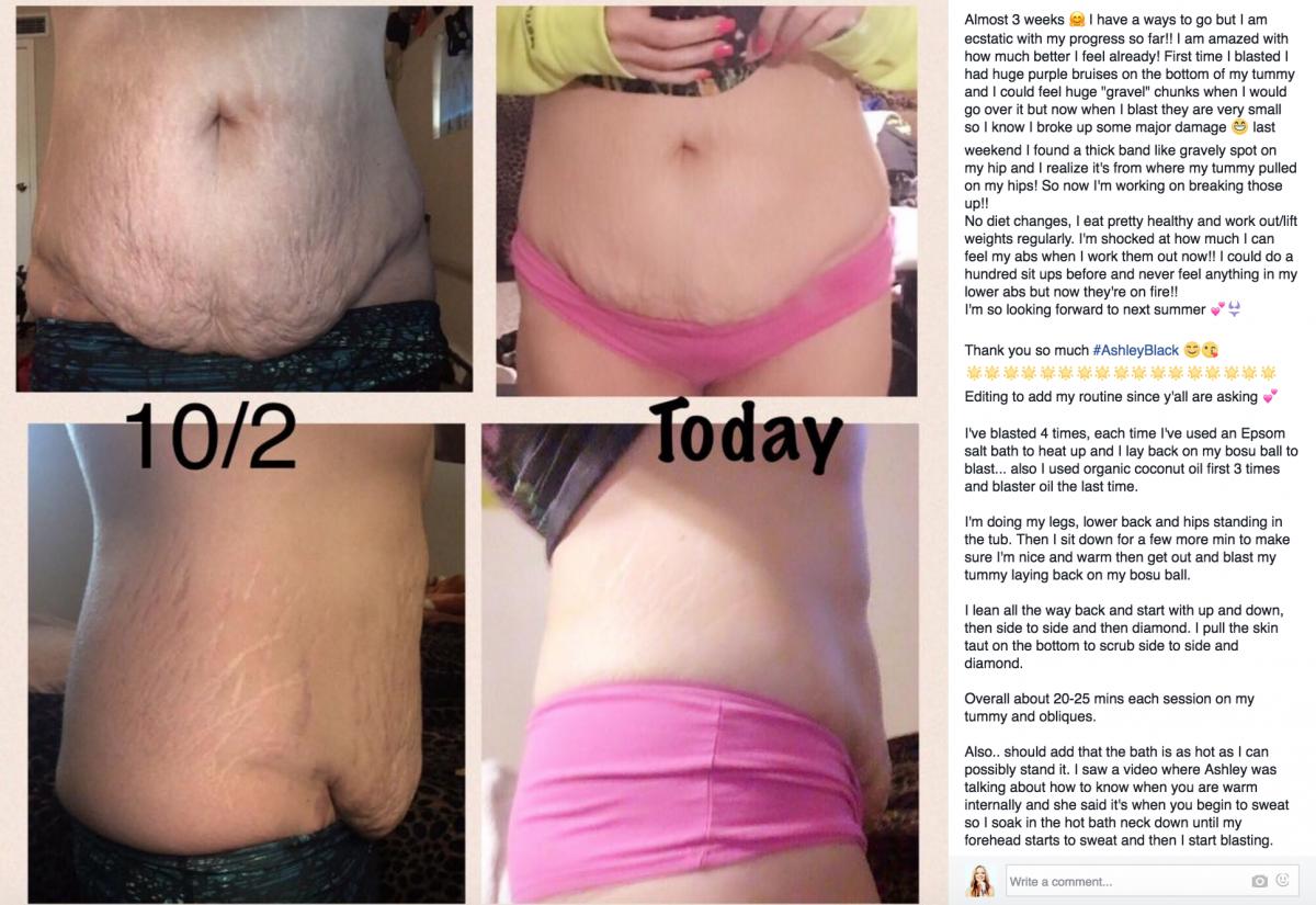 Jamie Corrao_2 weeks_ tummy fat stretch  marks FasciaBlaster results Fascia tool