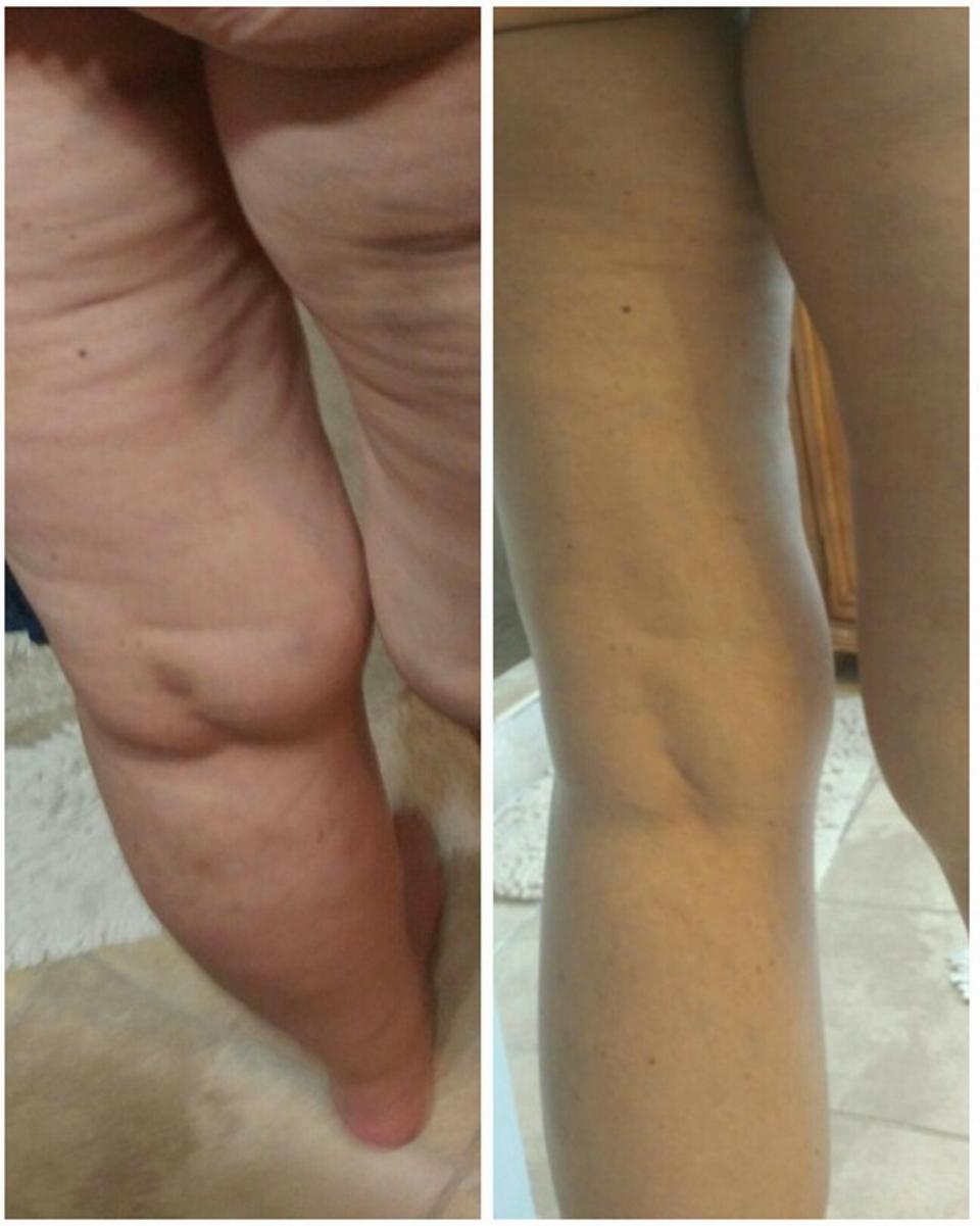 Tina Gressel cellulite