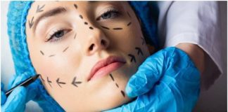 6 Things to Consider Before Plastic Surgery