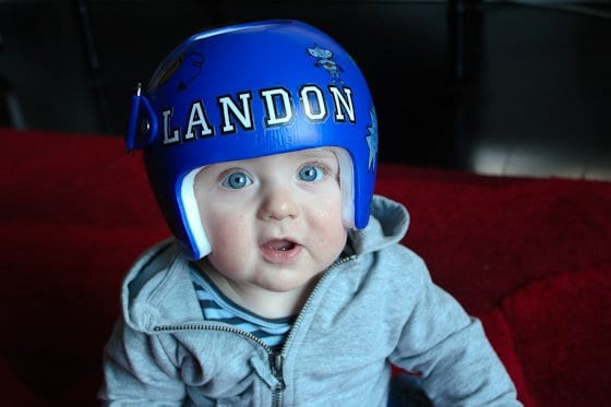 Babies In Helmets: What's It All About? 3 Daily Mom Parents Portal