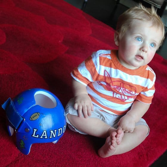 Babies In Helmets: What's It All About? 2 Daily Mom Parents Portal