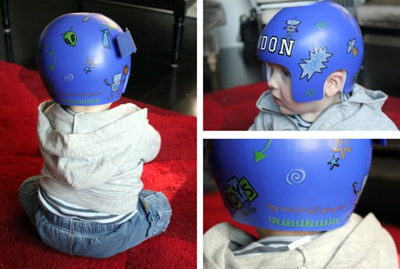 Babies In Helmets: What's It All About? 4 Daily Mom Parents Portal