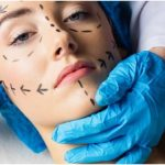 6 Things To Consider Before Having Plastic Surgery