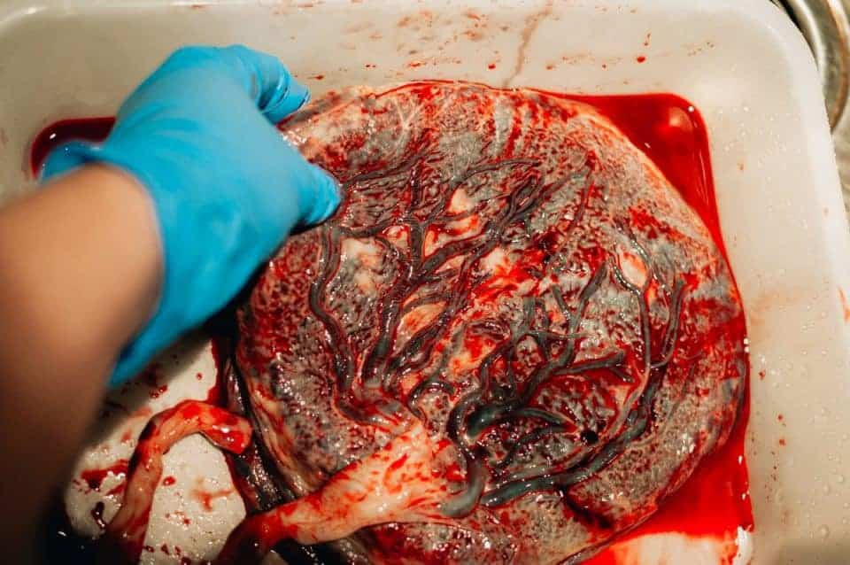 placenta-encapsulation-benefits (16)