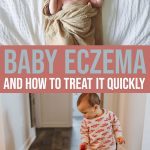 Everything You Need to Know About Baby Eczema and How to Treat It Quickly 1 Daily Mom Parents Portal