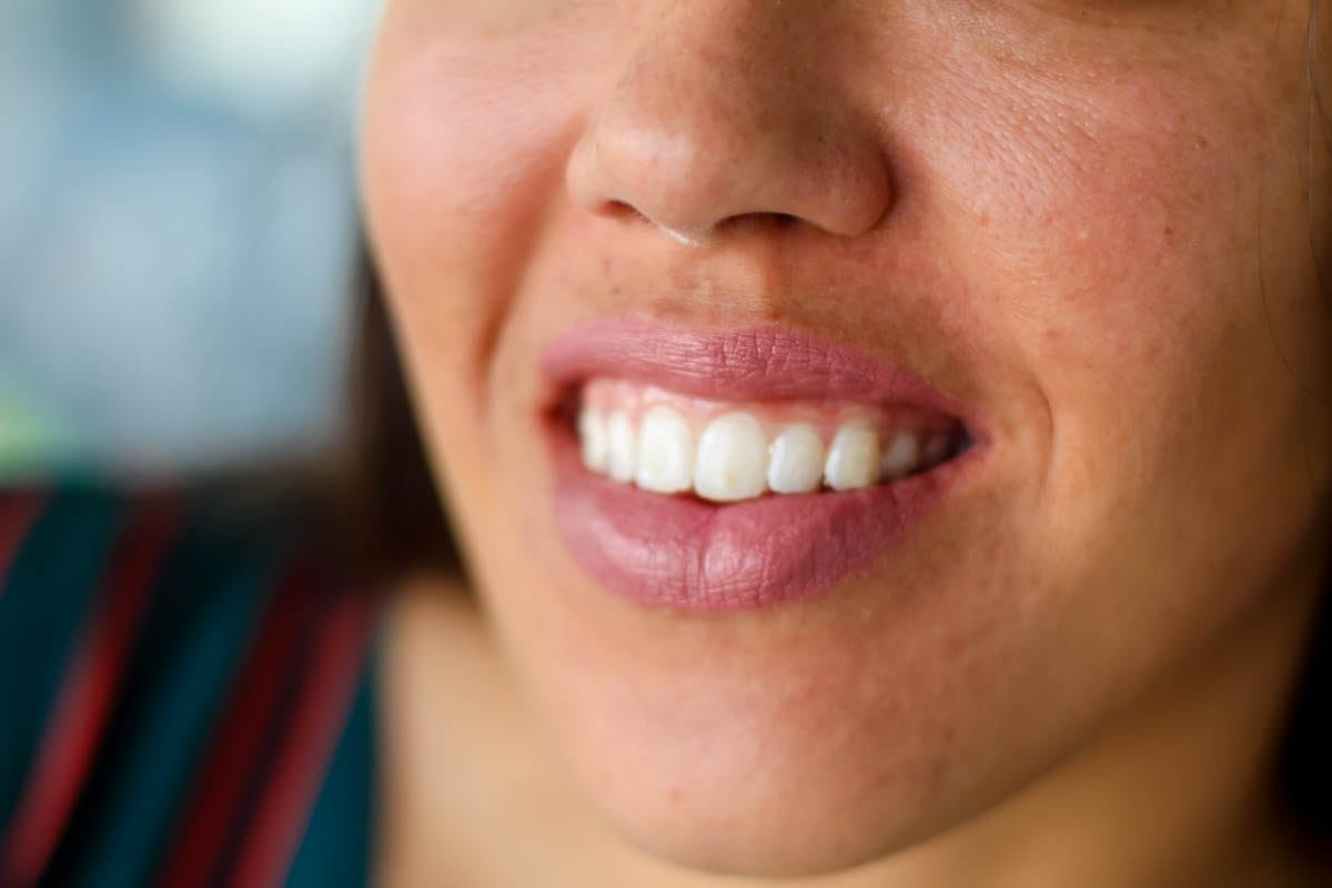 6 Reasons Why Byte Invisible Aligners Are The Perfect Alternative To Braces